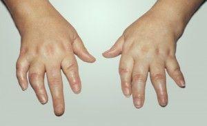псориатический артрит на руках