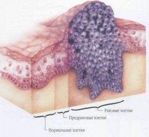 Схематичное изображение рака языка