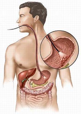 Рак желудка полип