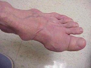 Ревматоидный артрит ног: как определить и лечить коварный недуг