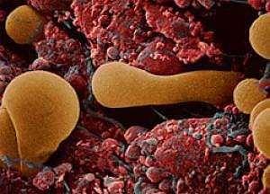 Риск развития ревматоидного артрита повышает беременность