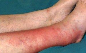 Рожистое воспаление ноги — симптомы, лечение, профилактика