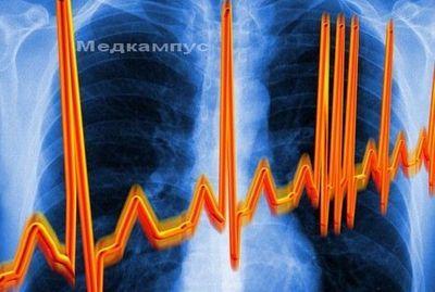 Симптомы аритмии сердца вена