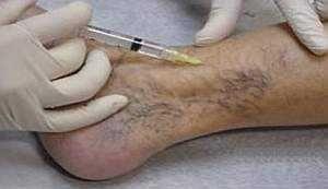 Симптомы и лечение тромбофлебита вен нижних конечностей