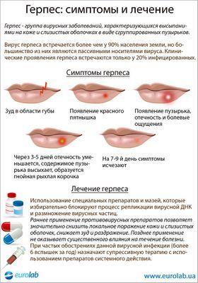 Симптомы и лечения герпеса