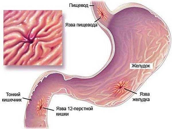 Симптомы язвы желудка, схемы лечения, препараты