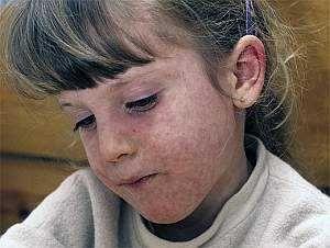 Симптомы кори у детей, лечение и осложнения