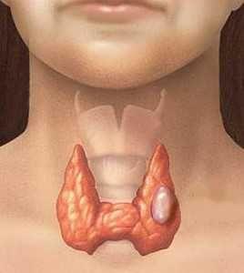 щитовидная железа пораженная раком