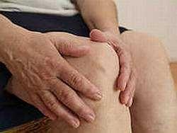 Симптомы ревматоидного артрита, методы лечения