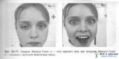 Синдром опущения верхнего века