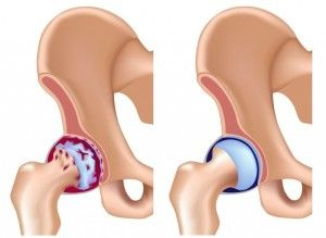 Тазобедренный сустав: анатомия, возможные проблемы