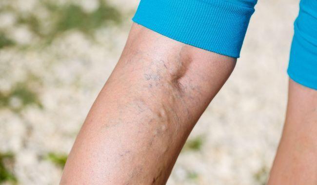 Тромбоз глубоких вен: 8 симптомов, сигнализирующих об опасности