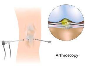 Удаление мениска коленного сустава все за и против