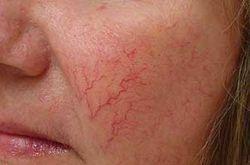 Удаление сосудов на лице методом электрокоагуляции