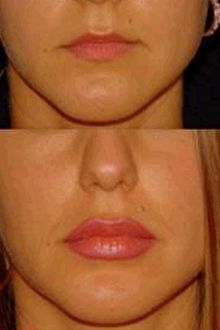 Уколы ботокса в губы