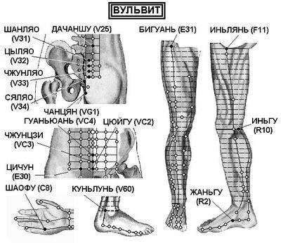 Вагинит (кольпит), вульвовагинит, вульвит
