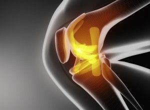 Виды перелома колена и способы лечения