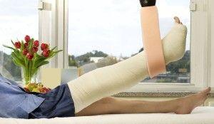Восстанавливаем утраченные функции после перелома ноги