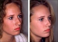 Возможные осложнения после септопластики носа
