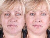 Все о ретиноевой мази от морщин