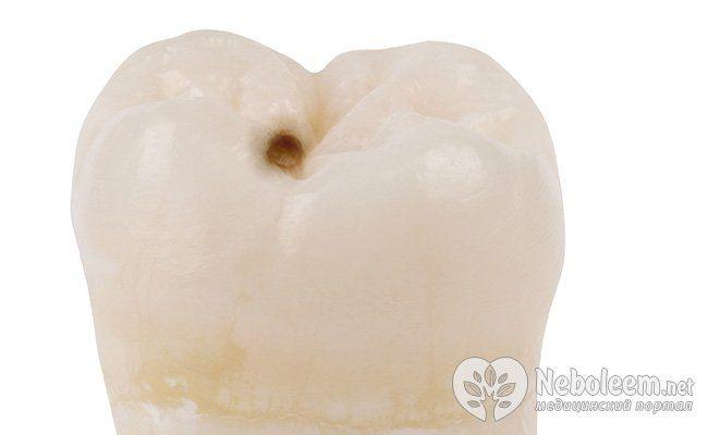 Зубы мудрости: удалить или оставить?